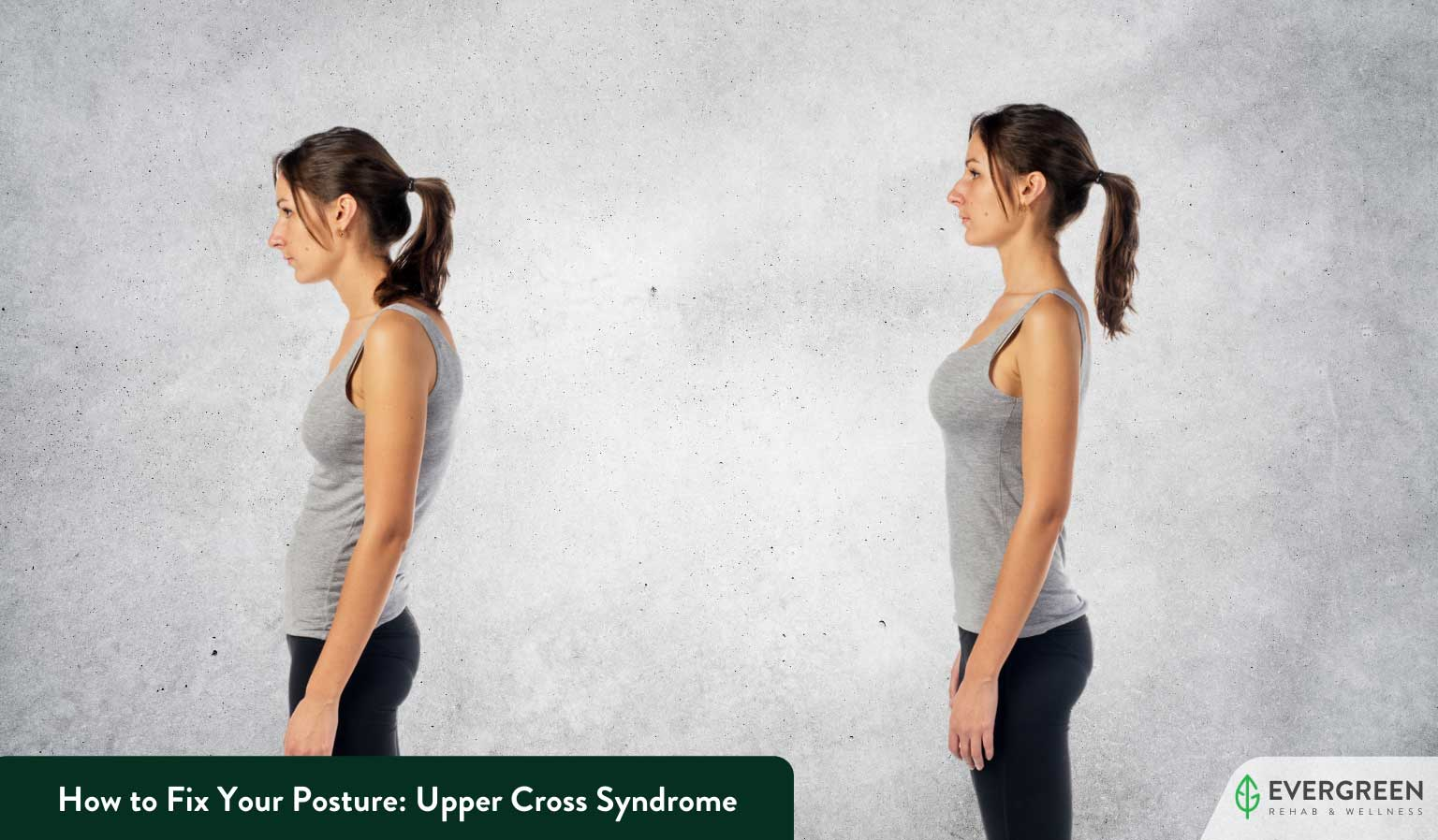 How to Fix Your Posture: Upper Cross Syndrome