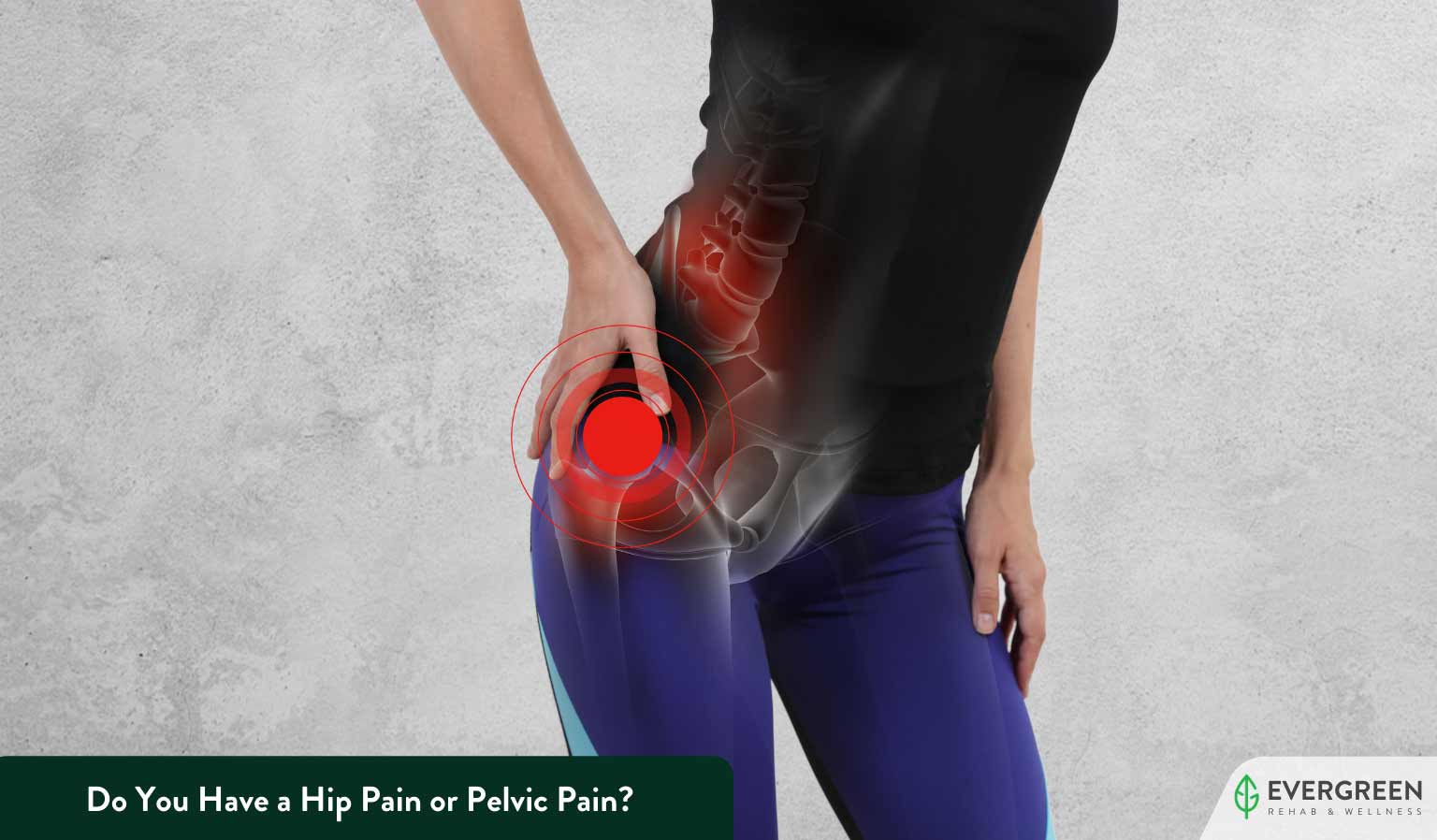 Do You Have a Hip Pain or Pelvic Pain?