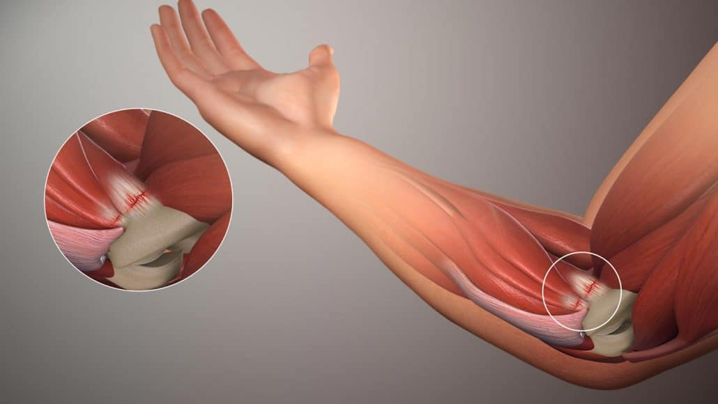 Golfer's Elbow Anatomy