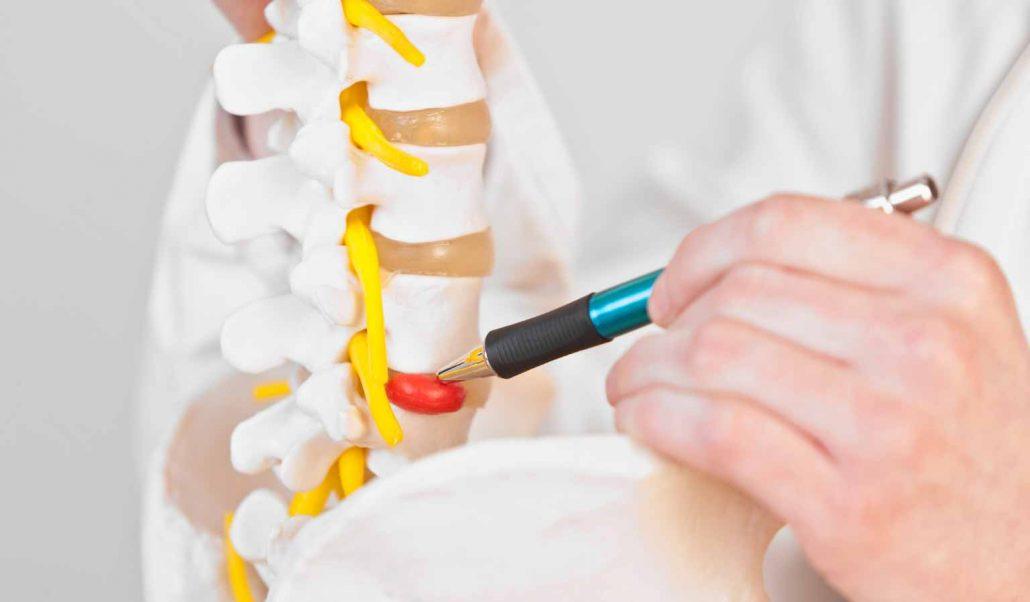 Lumbar-Disc-Herniation