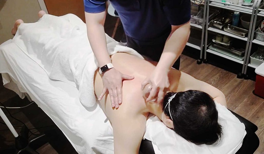 Moving Cupping