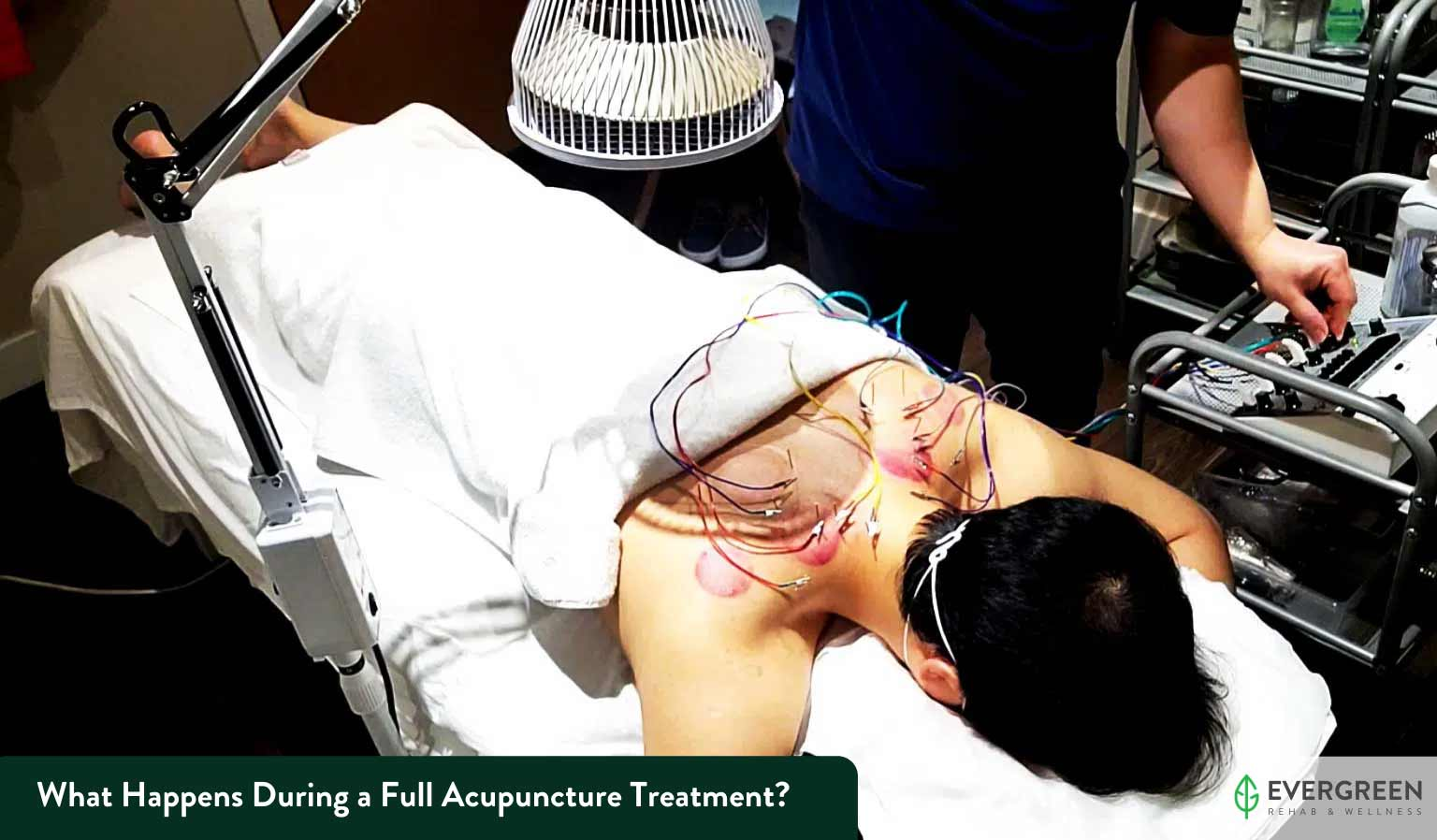 What Happens During a Full Acupuncture Treatment?