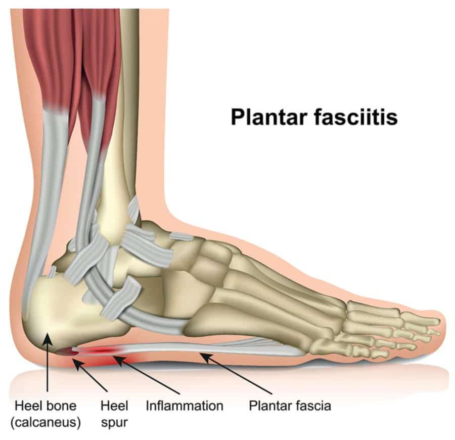 plantar-fasciitis-illustration