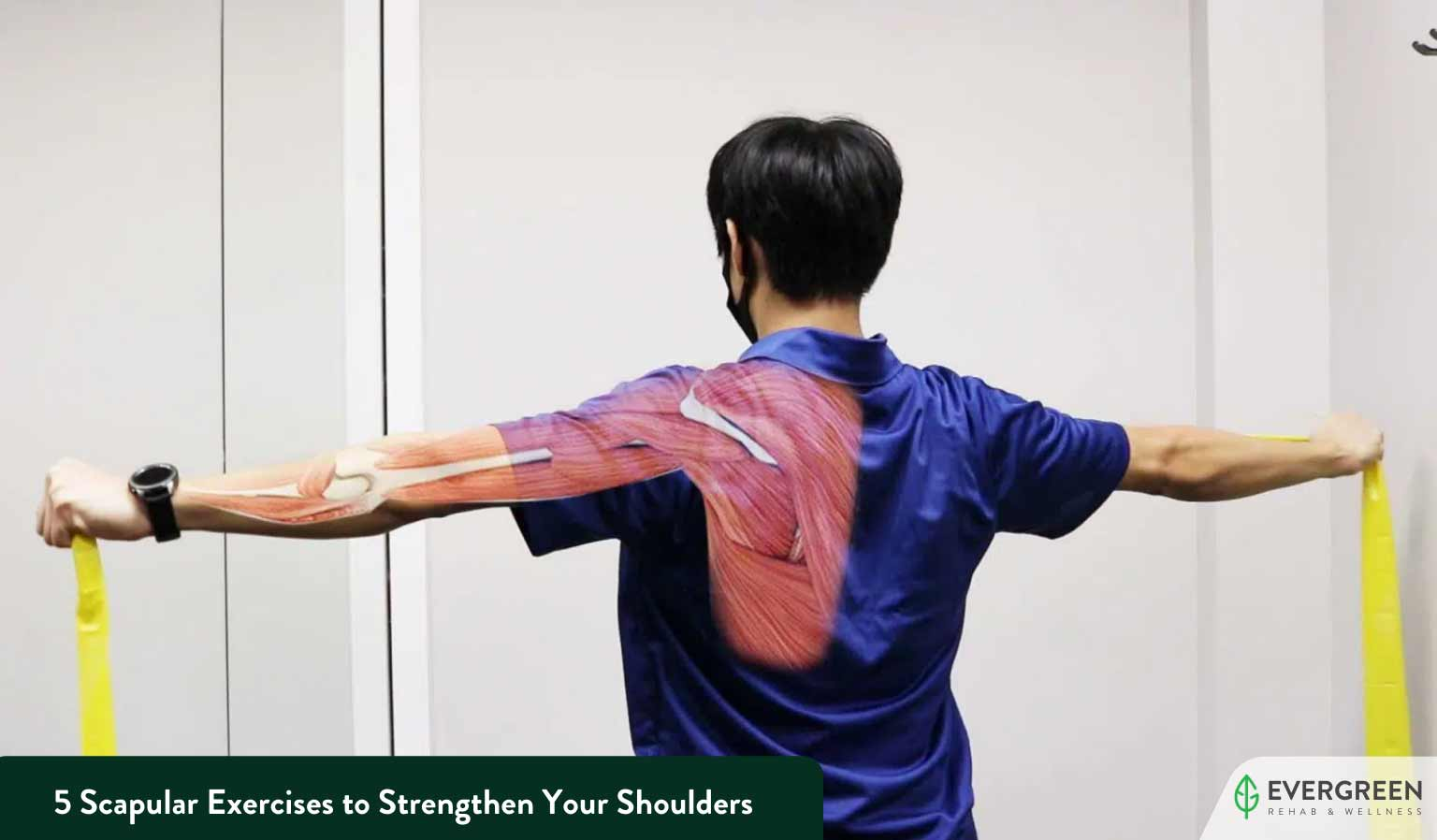 5 Scapular Exercises to Strengthen Your Shoulders