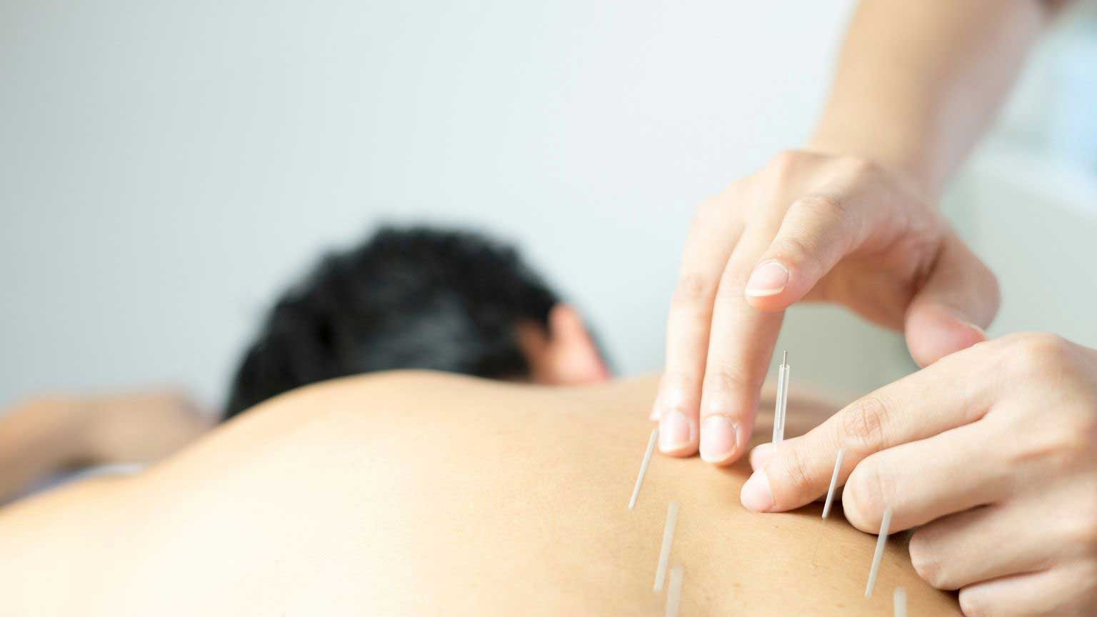 Acupuncture for Workplace Stress Relief