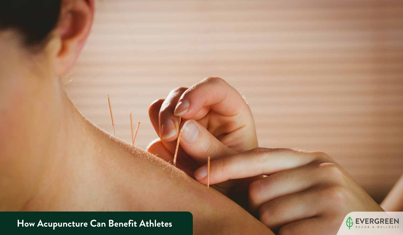 How Acupuncture Can Benefit Athletes