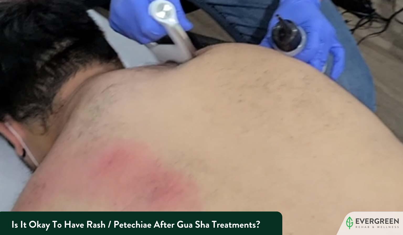 Is It Okay To Have Rash / Petechiae After Gua Sha Treatments?